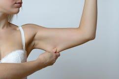 Ung kvinna som visar den lösa huden Fotografering för Bildbyråer