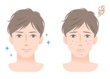 Ung man med akne på hans ansikts- behandling för framsida före och efter vektor illustrationer