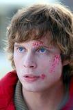 Ung man med blåmärken på en framsida Royaltyfria Foton