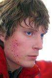 Ung man med blåmärken på en framsida Royaltyfri Foto