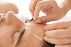 Ung man som genomgår akupunkturbehandling i salongen, closeup royaltyfria bilder