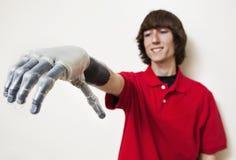 Ung man som ser hans prosthetic hand över grå bakgrund Royaltyfri Fotografi