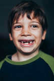 Ung pojke som grinar med saknade tänder fotografering för bildbyråer