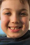 Ung pojke som visar hans första saknade tand Arkivfoto
