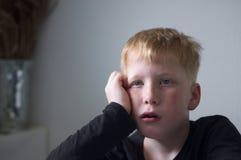Ung röd haired pojke med fräknar arkivfoto