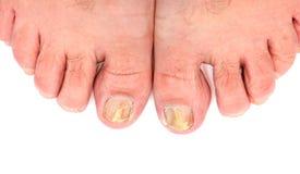 Unghie del piede infettate con il fungo Fotografia Stock Libera da Diritti