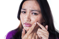 Unhappy girl touching pimple on cheek. Teenage girl removing pimple on her cheek by touching it with her fingers, isolated on white Royalty Free Stock Photography