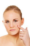 Unhappy young woman touching her pimple.  Royalty Free Stock Images
