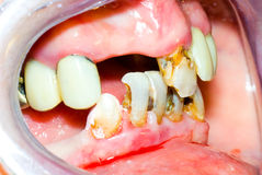 Unhealhty teeth. Before the oral rehabilitation royalty free stock photography