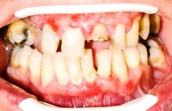 Unhealhty teeth. Before the oral rehabilitation stock photography