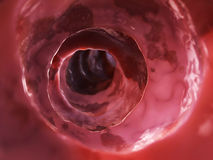 Unhealthy colon. 3d rendered illustration of the inside of an unhealthy colon Royalty Free Stock Images