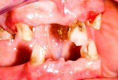 Free Unhealthy Mouth Stock Photos - 29420613