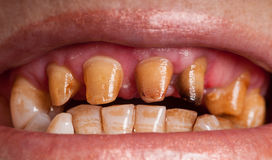 Unhealthy Teeth. Horizontal photo of unhealthy teeth. One of her tooth is darkened. All of the teeth is brown because of cigarette and smoking. Teeth is prepared stock photo
