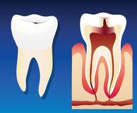 Unhealthy tooth. A llustration showing an unhealthy tooth with a cross section vector illustration