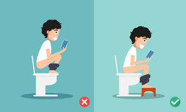 Unhealthy vs healthy positions for defecate Stock Photos