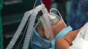 Unidentified Child with an oxygen mask on a critical surgery. Unidentified Child with an oxygen mask on a critical surgery stock video footage