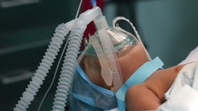 Unidentified child with oxygen mask ready for surgery stock video footage