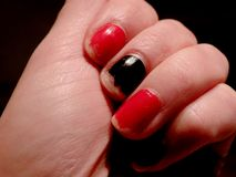 Unkempt nails Royalty Free Stock Images