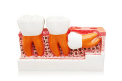 Unperfect growth of dental. Sample of unperfect growth of dental.  on white Stock Image
