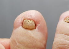 Unpleasant toes with toenails affected by fungal disease Stock Image