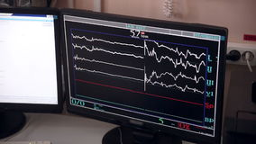 Unrecognizable doctor controls operation performing in hospital operating room on computer screens. stock footage