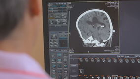 Unrecognizable Doctor examines a head MRI scan on a computer screen. stock footage