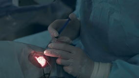 Unrecognizable Doctors hands performing surgery in hospital operating room. 1080p stock video