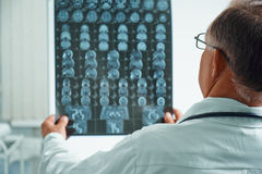 Unrecognizable senior doctor examines MRI image Royalty Free Stock Photo