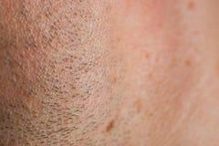 Unshaved skin. Stock Photos