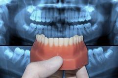 Unterer Zahnbogen der Zahnarztshow über Röntgenstrahlzähnen stockfotos