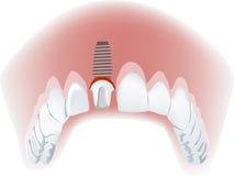 Unterkiefer mit einem falschen Zahn Stockbild