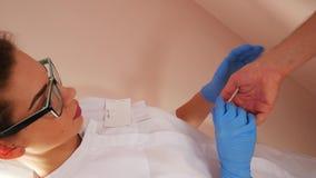 Untersuchungspatient Doktors mit Dermatitis auf Händen, Nahaufnahme stock video footage