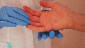 Untersuchungspatient Doktors mit Dermatitis auf H?nden, Nahaufnahme stock footage