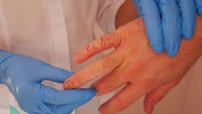 Untersuchungspatient Doktors mit Dermatitis auf H?nden, Nahaufnahme stock video