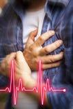 Uomini con dolore toracico - attacco di cuore Immagini Stock