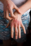Uomini del primo piano che itching a mano e che graffiano Psoriasi o eczema sulla mano Pelle di allergia atopica con i punti ross Fotografia Stock Libera da Diritti
