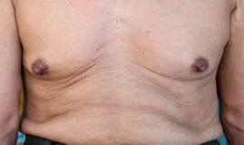 uomo anziano con una cellulite su uno stomaco fotografie stock