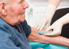 Uomo anziano sul trattamento dell'anticoagulante fotografie stock libere da diritti
