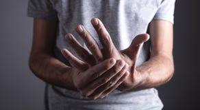 Uomo caucasico con dolore del polso artrite fotografia stock libera da diritti