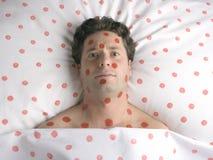 Uomo con i punti rossi sul fronte e sul corpo fotografie stock libere da diritti