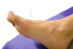 Uomo con l'ago di agopuntura in piede Fotografie Stock