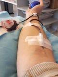 Uomo con l'ago quando donano sangue all'ospedale Fotografia Stock Libera da Diritti