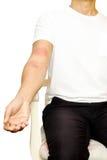 Uomo con l'eruzione di allergia della pelle sul suo braccio isolato Fotografia Stock