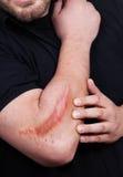 Uomo con la cicatrice pesante sul suo braccio Fotografie Stock