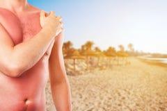 Uomo con pelle bruciata dal sole sulla spiaggia immagine stock