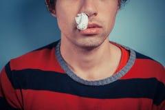 Uomo con sanguinamento del naso e le febbri Fotografia Stock