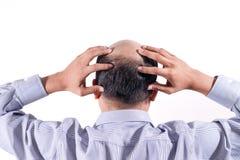 Uomo d'affari calvo con la sua testa sulla vista del cuoio capelluto da dietro con wh fotografia stock libera da diritti