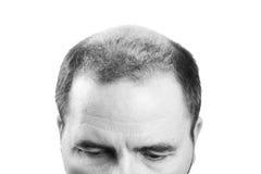 Uomo di mezza età responsabile dall'alopecia di calvizile di perdita di capelli in bianco e nero Fotografia Stock