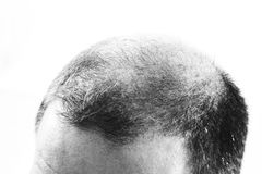 Uomo di mezza età responsabile dalla fine di alopecia di calvizile di perdita di capelli su fondo in bianco e nero e bianco Fotografia Stock Libera da Diritti