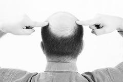 Uomo di mezza età responsabile dalla fine di alopecia di calvizile di perdita di capelli su fondo in bianco e nero e bianco Immagini Stock Libere da Diritti